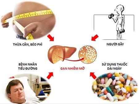 nguyên nhân dẫn đến bệnh gan nhiễm mỡ