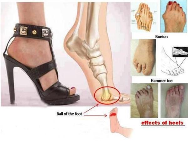 tác hại của việc đi giày cao gót không đúng cách