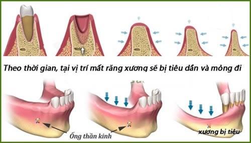 Kết quả hình ảnh cho bị tiêu xương hàm